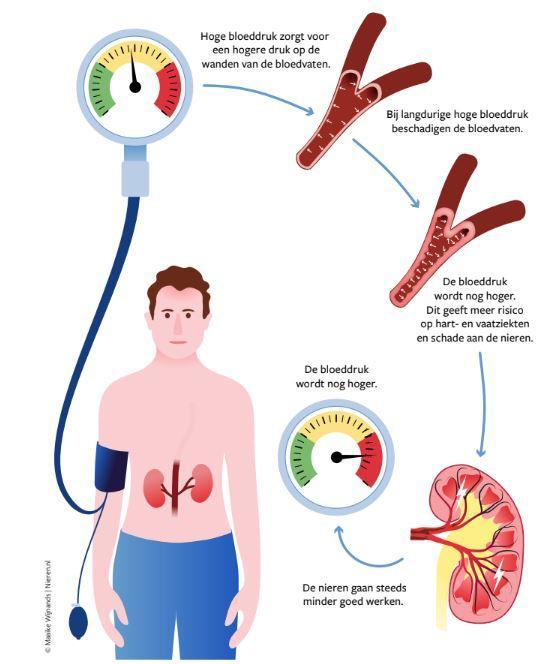 Verband Tussen Nierschade Hoge Bloeddruk En Diabetes